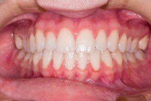 teeth, smile, dentist